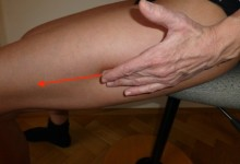 Das Läuferknie (Traktussyndrom)